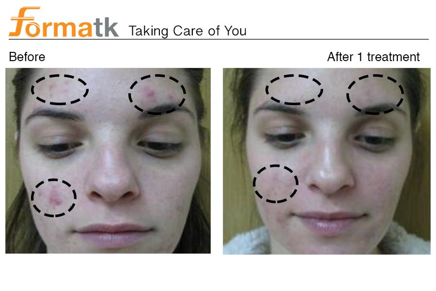 acné vulgaris_3