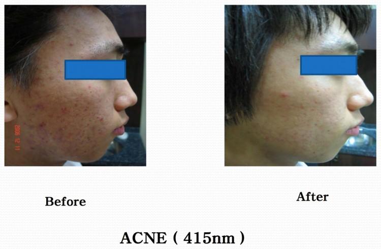 Shiny acne 1
